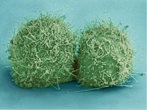 bakterien munddusche