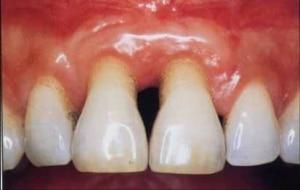 munddusche gegen paroodontitis